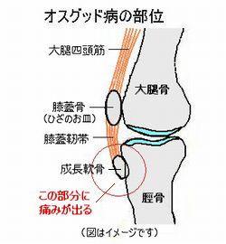 オスグット病図-2