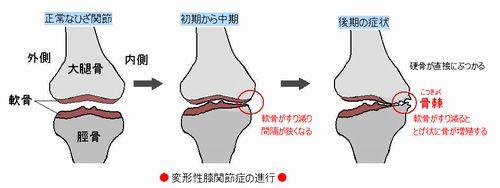 変形性膝関節症の進行-2