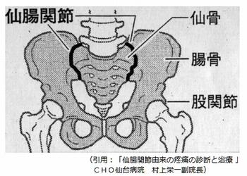 仙腸関節障害とは