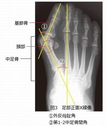 外反母趾の症状・診断レントゲン写真