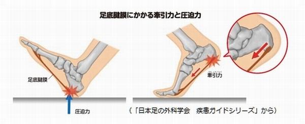 足底腱膜炎原因