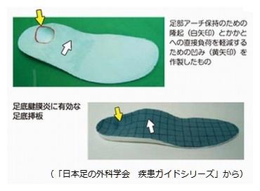 足底腱膜炎用靴の中敷き